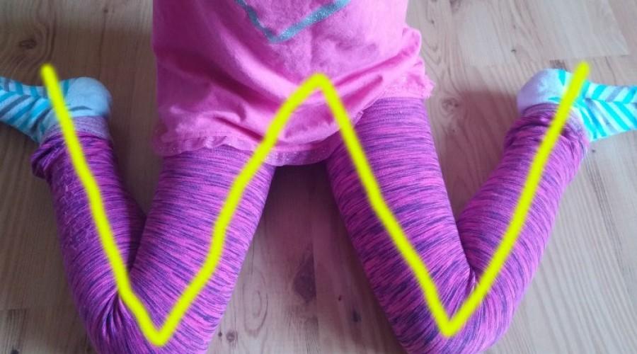 Kids Corner: The Negatives of W-Sitting